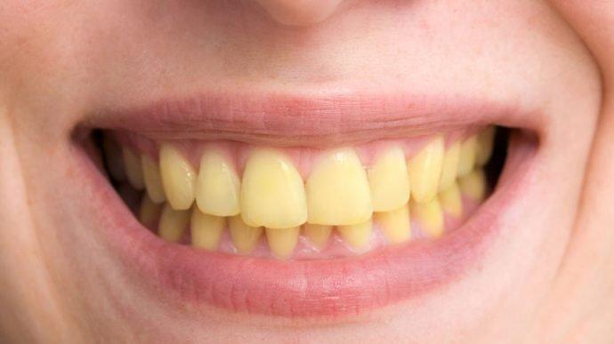dent-jaune